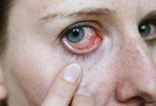 Após-Carnaval do Nordeste de Amaralina calor provoca epidemia de conjuntivite