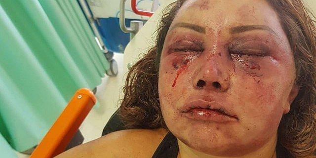 """Photo of """"Ele quase me matou"""", diz mulher espancada por quatro horas no RJ"""