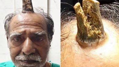 Photo of Chifre de 10 cm cresce em homem e é retirado em cirurgia na Índia